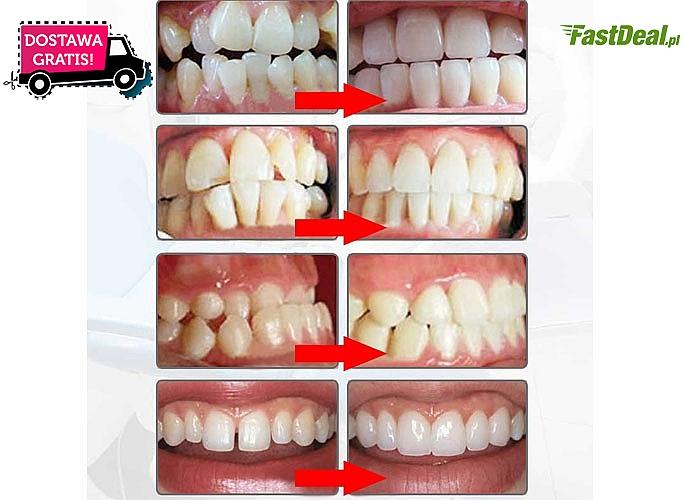 Nakładka wyrównująca zęby