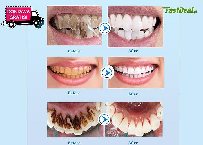 Moda na Hollywoodzki uśmiech trwa! Poznaj dobry sposób na białe zęby w kilka dni